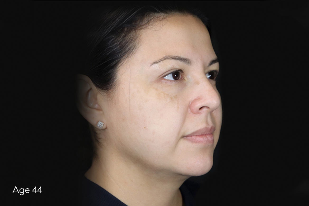 Woman before Silhouette Instalift Treatment in Lemont, Illinois at Solana Aesthetics and Wellness Spa